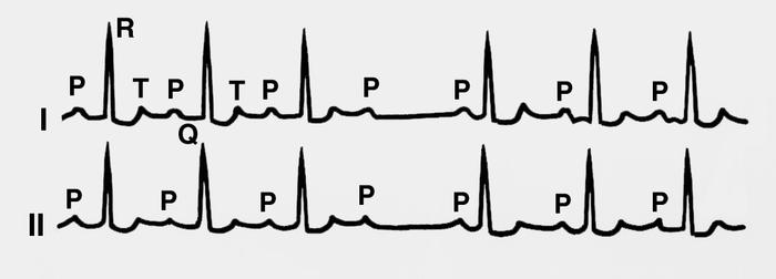 Сердечные сокращения при передозировке Дигоксином
