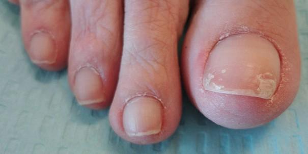 Проблемы с ногтями при хронической интоксикации формальдегидом
