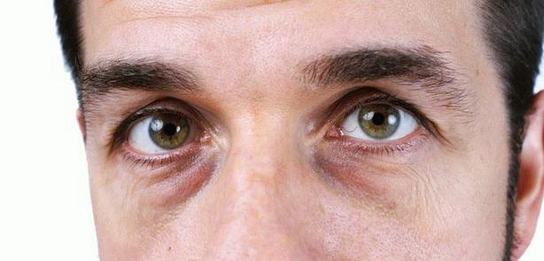 Круги под глазами
