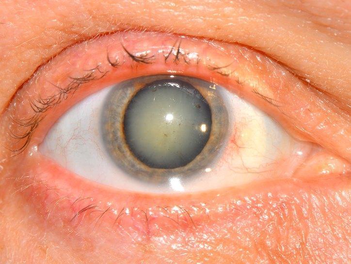 Помутнение глазного хрусталика