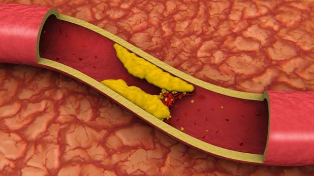 Нарушение холестеринового обмена