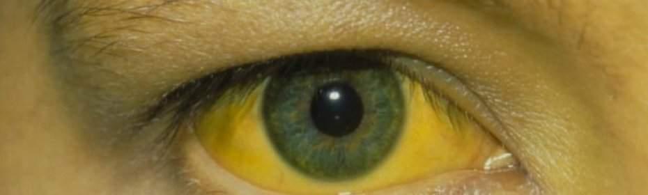 Желтый оттенок сетчатки глаза