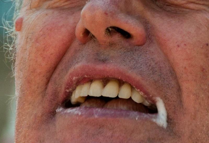 Пена изо рта - признак критической ситуации