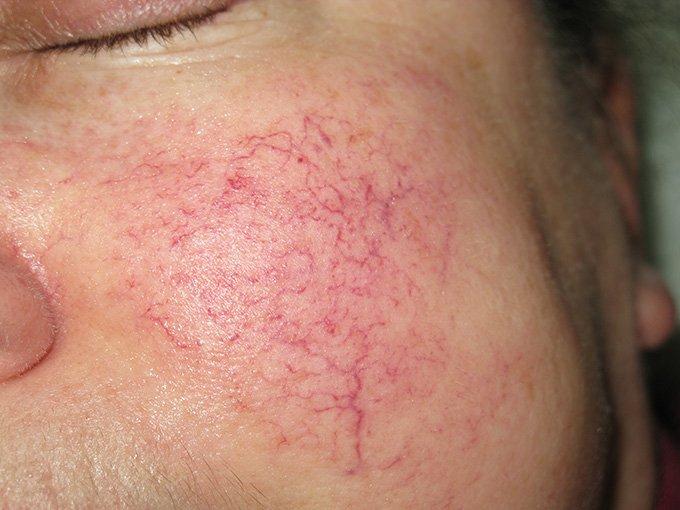 Вздутие вен на лице
