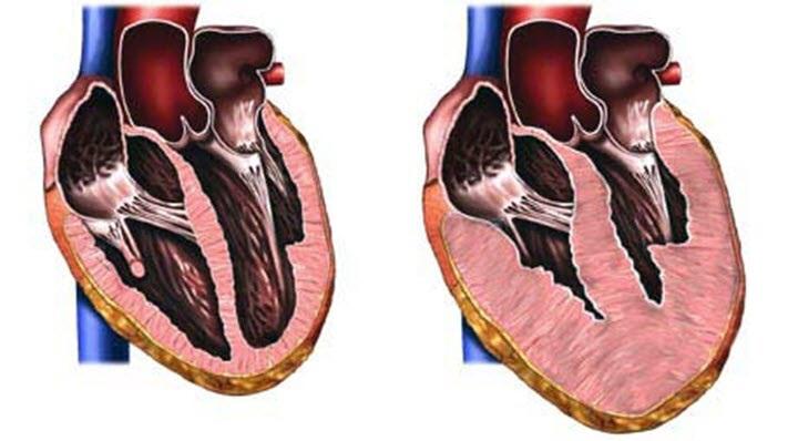 Расширение сердечной мышцы