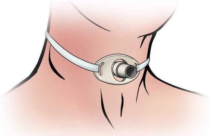 Трахеотомия при отеке гортани
