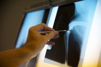 Вред рентгеновского излучения