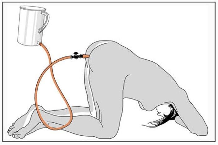 Способ очищения кишечника по Малахову